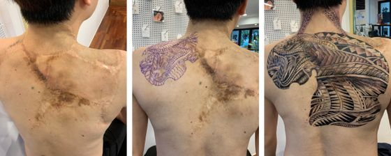 One of Cho's clients who covered a large scar on his back with a tattoo.[CHO MYUNG-SHIN]