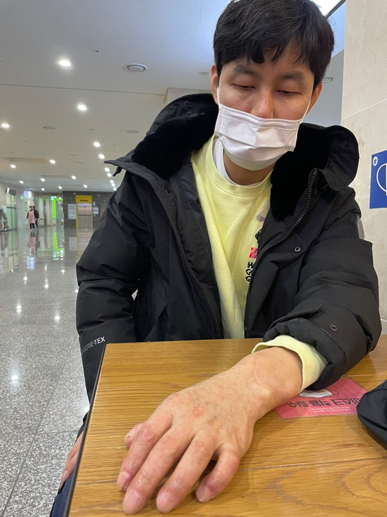 Son Jin-wook, 40, the first person to successfully receive a hand transplant in Korea, shows his hand four years after his surgery last Thursday while visiting Daegu Catholic University Hospital. [KIM YOUN-HO]
