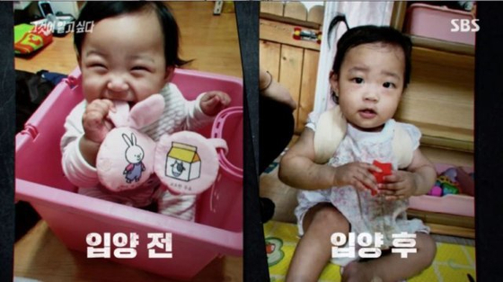 In these screen captures from SBS's investigative report aired Saturday, a photo of Jeong-in before her adoption is shown on the left and a photo after her adoption is shown on the right. [SCREEN CAPTURE]