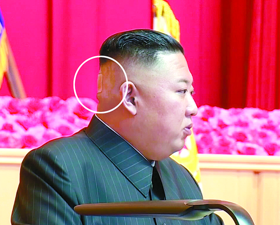 The flesh-colored bandage on the back of North Korean leader Kim Jong-un's head is visible as he speaks to senior military and party officials during a session which lasted four days from July 24 to 27. [KCNA]