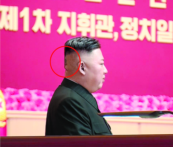 Another photograph of Kim's side profile shows a dark area where the bandage had previously been. [KCNA]